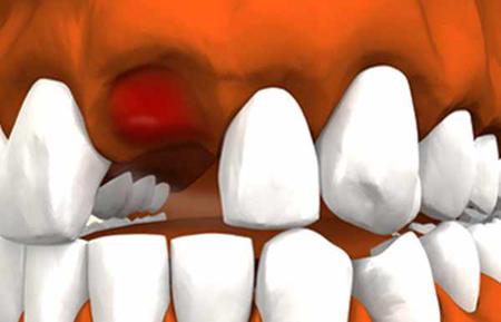 Что образуется на месте вырванного зуба