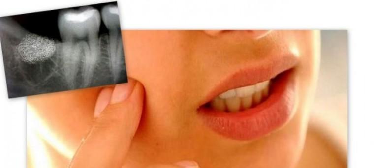 Альвеолит после удаления зуба как лечить в домашних условиях 100