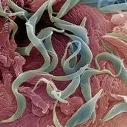 Анкилостомидозы