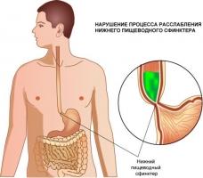 Ахалазия кардии симптомы