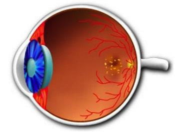 Дегенерация сетчатки глаза