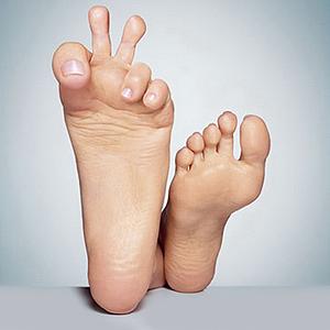 Дрожжевой грибок ногтей