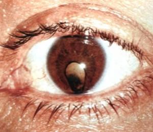 Колобома глазной сетчатки