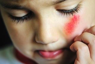 Лечение ссадины на лице