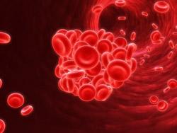Нарушения свертываемости крови