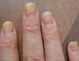 Начальная стадия грибка на руках