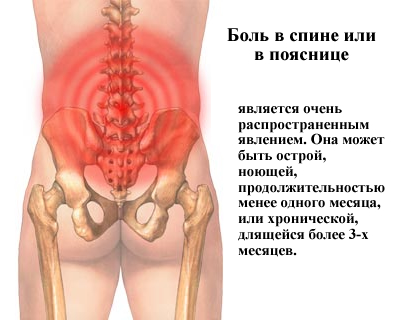 Задержка месячных и боль внизу живота и в пояснице у женщин