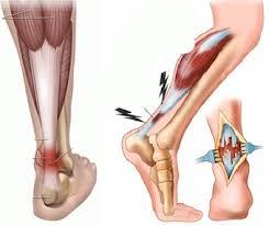 Повреждение ахиллова сухожилия