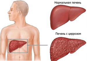 Продолжительность жизни при циррозе