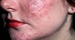 Хеликобактер пилори симптомы на лице