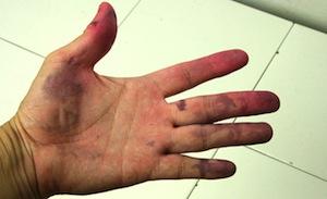 Чем снять краску с кожи