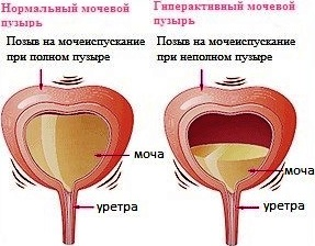 гиперактивный мочевой пузырь у женщин