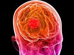 глиобластома мозга