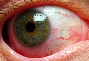 иридоциклит глазное заболевание