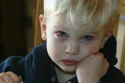 лопнул капилляр в глазу у ребенка