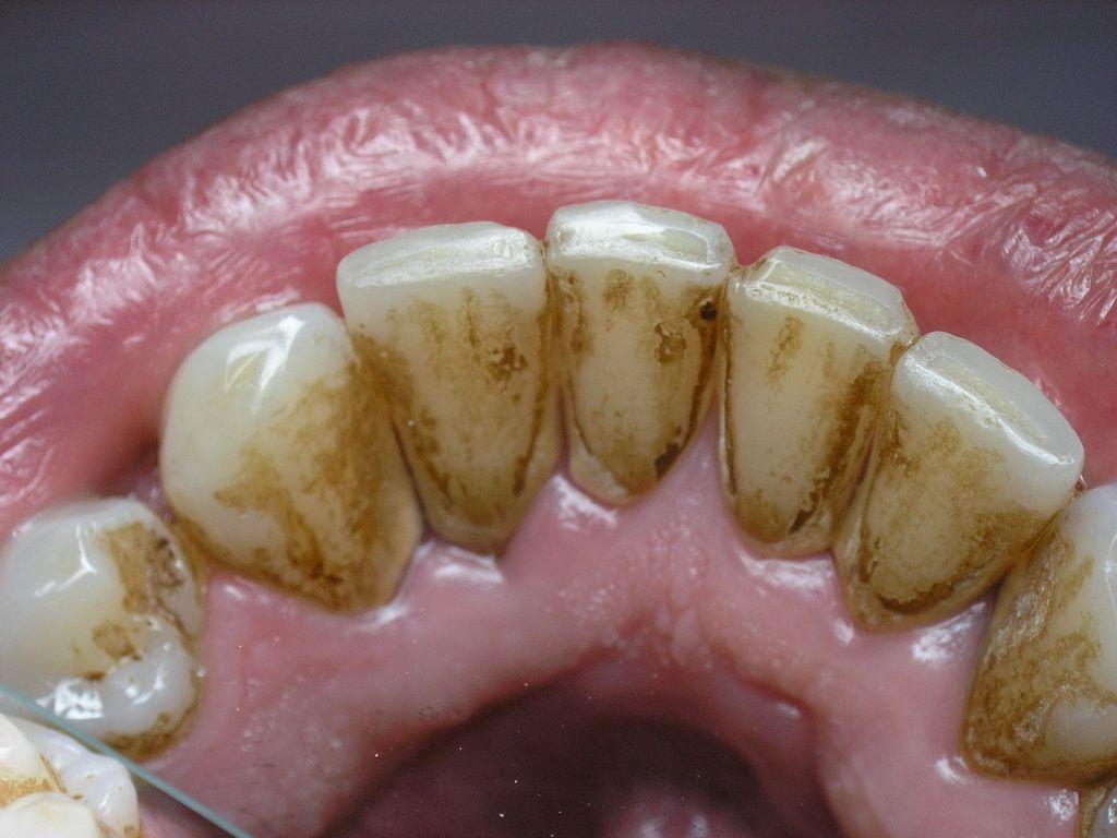 Как убрать коричневое с зубов в домашних условиях