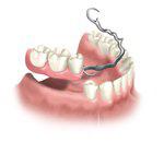 Методы протезирования зубов при большом их отсутствии