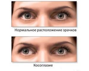 операции на глазах при косоглазии