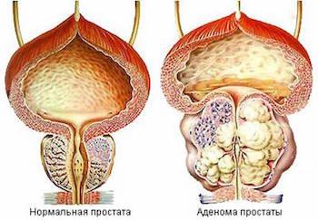 Лечение потенции физиотерапией этот продукт употреблять