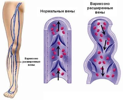 Отзывы о Детралекс или Венарус