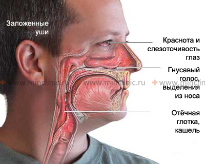 Катастрофическое выпадение волос и жирная кожа после ок регулон