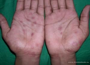 сифилитическая сыпь фото на руках