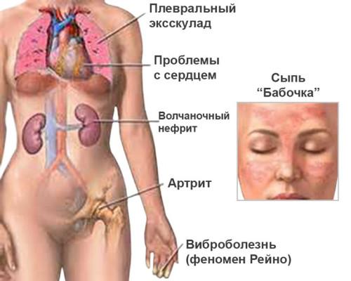 Simptomy-sistemnojj-krasnojj-volchanki