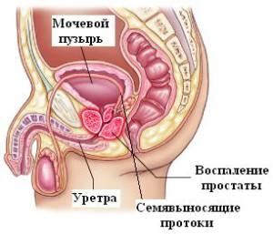 izobrazhenie-ostrogo-prostatita