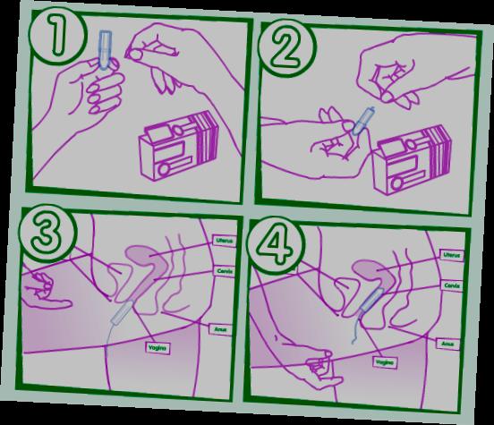Как Правильно Вводить Тампон Инструкция