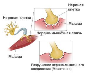 myasthenia-gravis-168639