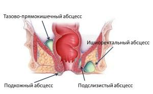 paraproktit2