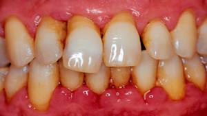 parodontit-1