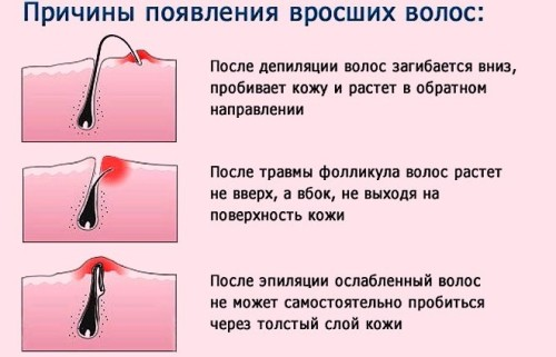 prichiny-vrosshih-volos
