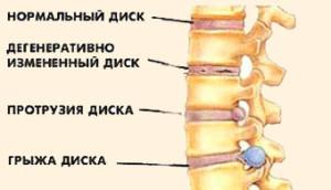 protruzia-diska