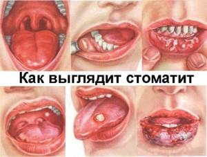 Аллергический стоматит симптомы