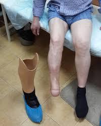 Ампутация ноги при гангрене