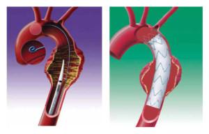 Аневризма грудной аорты лечение