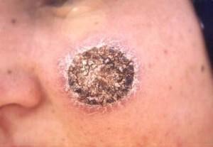 Антропонозный кожный лейшманиоз