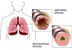 Бронхообструктивный синдром