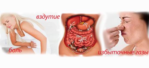 Газы в кишечнике симптомы
