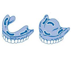 Кремы для фиксации зубных протезов