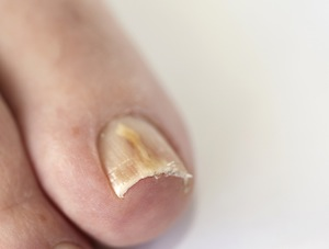 Onychomycosis on toenail