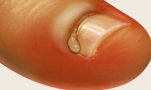 Нарыв на пальце у ногтя
