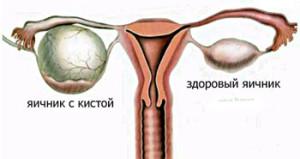 Опухоли яичников при беременности