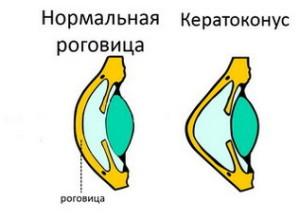 Патологии развития роговой оболочки глаза