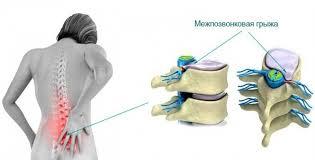Способы лечения поясничной грыжи без операции
