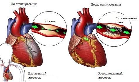 Стентирование сосудов сердца до и после