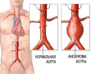 УЗИ брюшной аорты