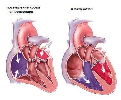 Ушиб сердца