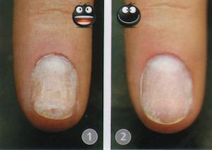 Чем плохо наращивание ногтей